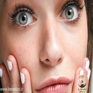 روش-های-شناخت-و-درمان-لک-پوست-و-صورت